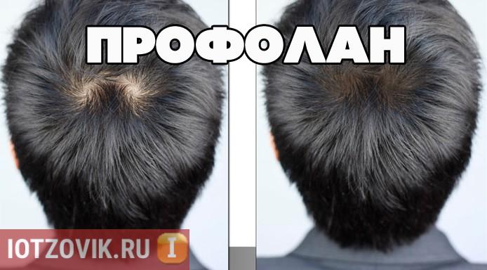 Профолан капсулы для роста волос
