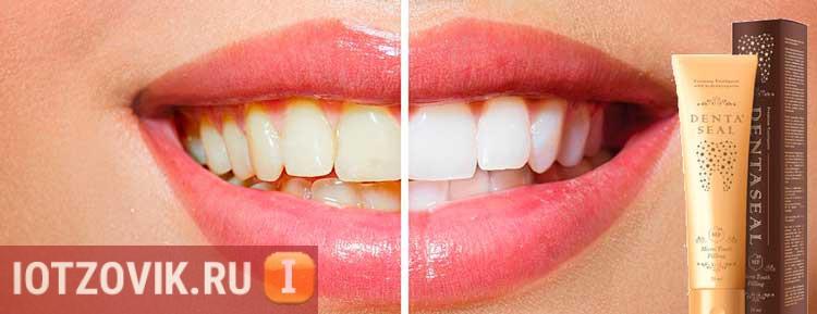 отбеливание зубов пломбирующая паста