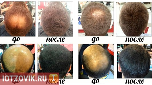 azumi сыворотка для роста волос