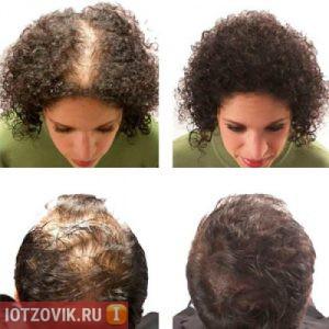 волосы до и после реальные фотографии