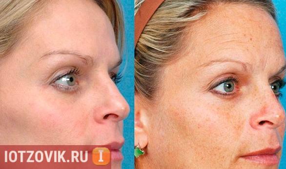 До и после применения отбеливающего крема