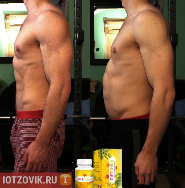 Dietonica фото до и после