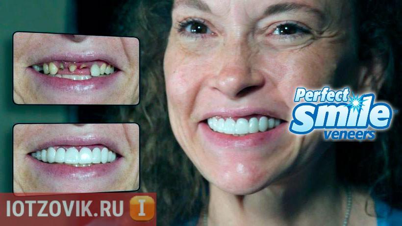Виниры: как скрыть страшные зубы