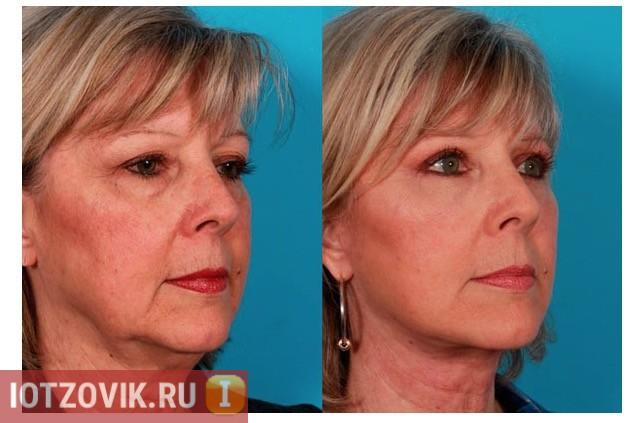 Фото до и после применения бандажа для лица